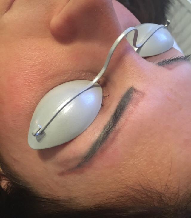 Schutzbrille bei der Tattooentfernung an Augenbrauen